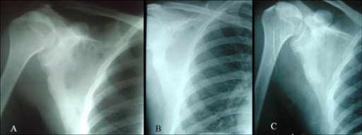 A. Initial radiograph of right scapula (at the time of presentation) showing multiple cystic lesions over the scapular body with surrounding sclerosis B. After 6 months of anti tubercular therapy, most of the cystic lesions healed. Still one cystic cavity is noticed on supero-medial aspect C. After 2 years, the cystic lesions have completely healed.