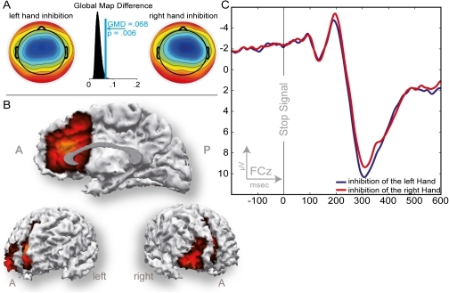 ERP data associated with successful inhibition after a stop-signal cue (N2).A: Scalp topographies for the left and right hand N2 peaks and histogram of the Global Map Dissimilarity permutation test between these two topographies. B: SWARM solution for the N2 revealing the aMCC as well the right inferior frontal cortex as source. C: ERPs recorded at channel FCz. Tactile stop-signal cue given at 0 on the abscissa.