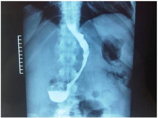 Gastrografin Swallow   HealthEngine Blog