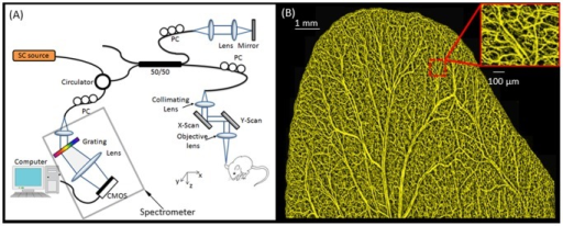 Schematic diagram of the spectral domain optical coherence tomography system and example of typical in vivo image obtained from the system.(a) SC source =  Supercontinuum light source; PC = polarization controller. (b) Projection-view OMAG image of the whole mouse pinna before the wound. The system was capable of resolving blood vessel networks down to the capillary level.