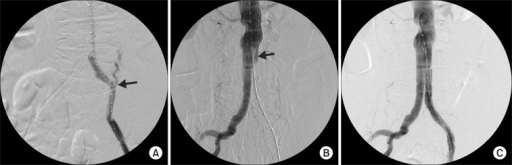 (A) Perforation at left proximal external iliac artery (arrow). (B) Occlusion of left graft limb (arrow). (C) Completion angiography showed no further extravasation and no occlusion.