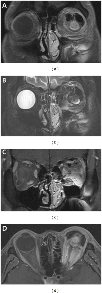 Magnetic resonance image (MRI). (a), (b) T1- and T2-weighted images reveal a large septate cystic mass in subconjunctival and orbital space with low signal intensity. (c), (d) The mass is located in the superior orbit accompanied by inflammatory reaction showing heterogenous enhancement in Gd-enhanced T1-weighted images.