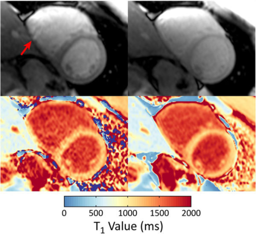 Non-saturated images (top) and T1 pixel maps (bottom) for standard SASHA (left) and SASHA-VFA (right) in a healthy subject. An artifact (arrow) in the inferior right ventricular wall is seen in the non-saturated image for standard SASHA, but not for SASHA-VFA.