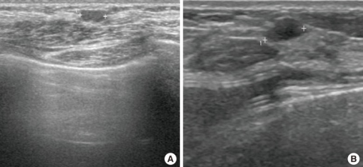 Complication after the fat graft(A) A 60-year-old woman, who initially underwent latissimus dorsi myocutaneous flap reconstruction, was noted to have fat necrosis at 38 months after fat graft with 150 mL in the left breast. (B) A 43-year-old woman, who initially underwent implant reconstruction, was noted to have a cyst 13 months after fat graft with 49 mL in the left breast.