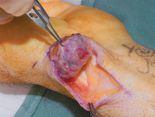 Intraoperative view of excisional biopsy. Note the clean separation of the vascularized myxoid tumor from the underlying soft tissue without evidence of invasion of the deep fascia.