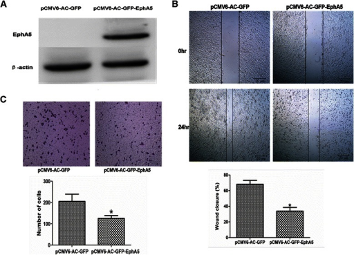 EphA5 overexpression inhibited the migration and invasiveness of Du145 cells. A. Western blot analysis of EphA5 protein (114 kDa band) expression in DU145 cells after transfection with pCMV6-GFP-EphA5. B. Cell migration activity determined with the wound healing assay. C. Cell invasion activity determined with the Matrigel invasion assay (×100). All experiments were performed in triplicate. Data are shown as the mean ± SD. *P < 0.05 vs. pCMV6-AC-GFP group.