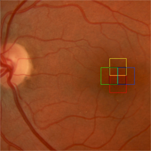 Color fundus photo with boxed areas showing the different locations of the fovea and perifoveal areas that were scanned using the adaptive optics camera with the patient fixating between 0 degrees and 2 degrees of retinal eccentricity from the foveal center along the horizontal and vertical meridians.