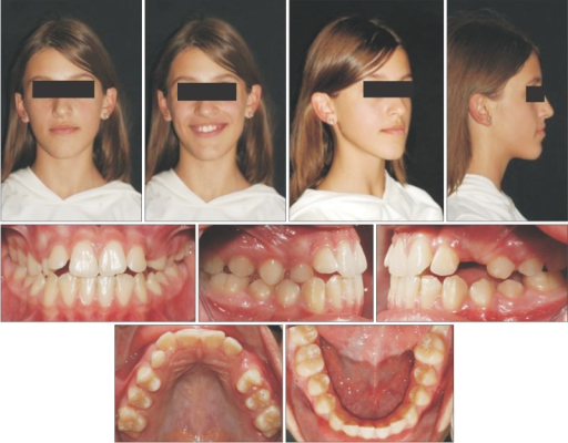 Pretreatment records: facial and intraoral photographs.