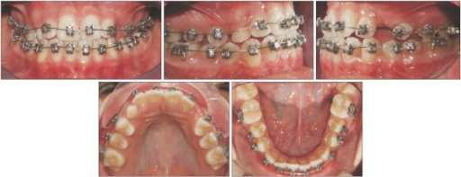 Intraoral photographs at bonding stage. A high-torque central incisor bracket (+17o torque value) was bonded to the first left premolar to facilitate the correction of the transposition.