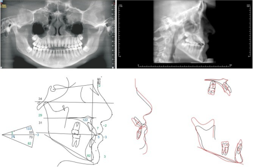 Post-treatment records: radiographs and cephalometric tracings (black, before treatment; red, after treatment).
