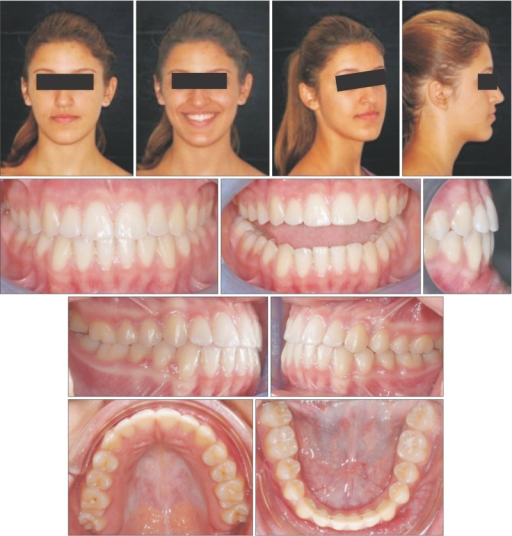 Post-treatment records: facial and intraoral photographs.