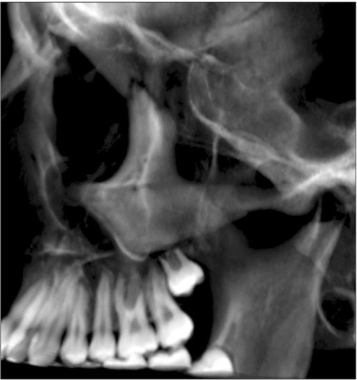 Three-dimensional image of the absence of progression of left first premolar (2.4) root resorption.