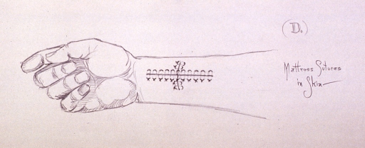 <p>Illustration depicting mattress suture techniques in the skin after repair of severed tendon in wrist.</p>