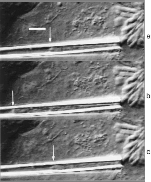 Young modulus measurements:  deformation of the chromosome inside the  pipette under aspiration. Deformation is  measured as a function of the pressure difference (ΔP) between inside the pipette  and the culture medium. From top to bottom: (a) ΔP = 0; (b) ΔP = 44 Pa. Arrows indicate the tip of the chromosome. Bar, 5 μm.