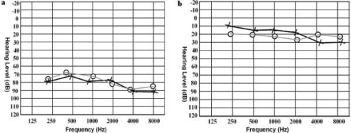 Audiograms for a hearing impaired (panel a) and unimpaired family member (panel b) from pedigree 4216. Circles and crosses represent air conduction for the right and left ear, respectively. Panel (a) displays the audiogram for individual 34 at 24 years of age and panel (b) displays the audiogram from individual 38 at 17 years of age.