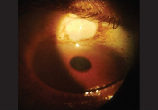 Case 2 left eye conjunctival inclusion cyst at 12 o' clock position