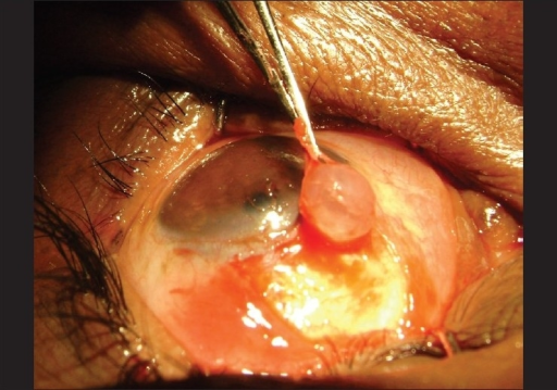 Conjunctiva above the cyst pulled in opposite direction to visualize fibrous attachments at base