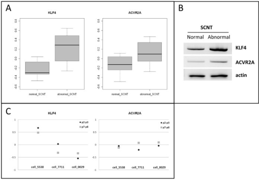 KLF4 and ACVR2A discriminate among normal and abnormal SCNTs.A) Box plots of KLF4 and ACVR2A expression in normal and abnormal SCNTs. B) PCR results from normal and abnormal EE tissues, pooled as indicated in Table S1. C) Expression of KLF4 and ACVR2A in the fibroblasts (5538, 7711 and 0029) used to generate SCNT High, Med, and Low conceptuses. Triangles correspond to cell passages temporally proximate to biopsy (p2-p3), squares to the passages closer to nuclear transfer (p7–p8).