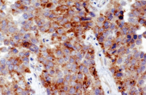 Photomicrograph of synapto-physin immunohistochemical staining (original magnification ×100).