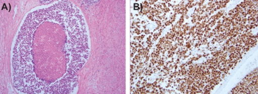 A) Histologic finding of large cell neuroendocrine carcinoma the uterus. The primary tumor showing extensive necrosis and organoid nesting pattern (×100); B) photomicrograph of p53 immunohistochemical staining (original magnification ×200).