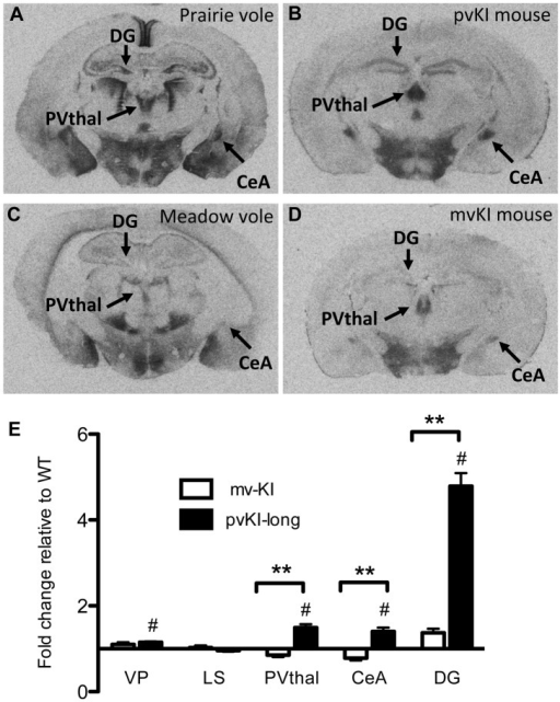 Microsatellite differences modulate species differences in V1aR patterns.Mice carrying the prairie vole Avpr1a microsatellite (B), as compared to mice carrying the meadow microsatellite (D), have higher V1aR binding in the dentate gyrus (DG), paraventricular nucleus of the thalamus (PVThal), and the central amygdala (CeA). These differences mirror those observed in the same brain regions of prairie (A) and meadow voles (C). (E) shows the difference in V1a levels relative to WT mice. Data are represented as mean ± SEM; n = 7–8 animals/group; **p<0.001, #p<0.05 compared to WT.