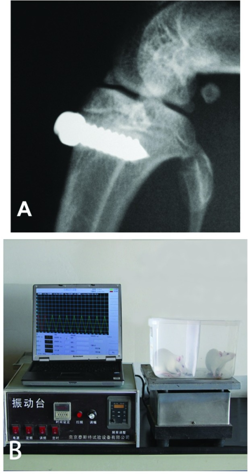 (A) X-ray demonstrating insertion of titanium implant in the proximal metaphysis of the tibia and (B) the vibrating device.