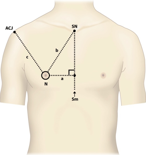 Anatomical landmarksSN, sternal notch; N, nipple; ACJ, | Open-i