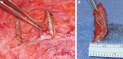 SBS tissue incorporation: Evaluation of SBS and soft tissue incorporation observed during an elective scar revision of an abdominal donor site 1 year following an SBS onlay reinforcement of a TRAM flap (A). Note that the thickness of tissue was approximately 2–3 mm (B).