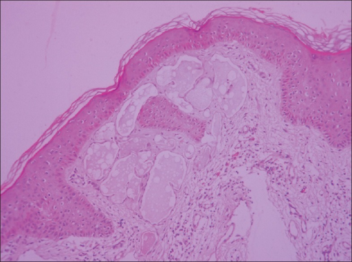 Histopathology skin showing dilated lymphatics in the superficial and papillary dermis lined by flattened endothelial cells with mild hyperkeratosis (H and E, ×40)