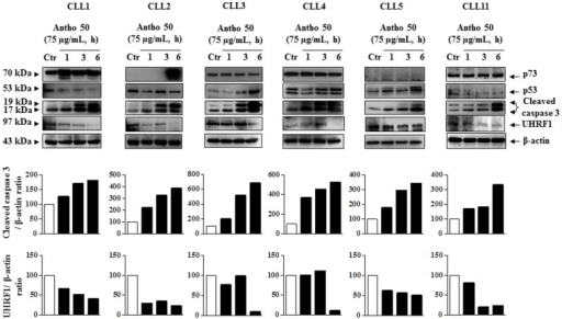 Antho 50 induces caspase 3 activation and UHRF1 down-regulation independently of p53 and p73.B CLL cells were incubated with Antho 50 at 75 μg/mL for the indicated times and thereafter the expression of the p53, p73, cleaved caspase 3 and UHRF1 was studied using Western blot. The control (Ctr) represents untreated cells harvested at 6 h. The data are representative of cells from six CLL patients. Cleaved caspase 3 and UHRF1 expression levels were analyzed by densitometry and represented as percentage compared with control.