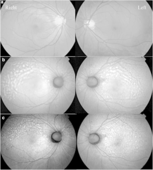 (a) Bilateral fundus photographs showing exudative detachment (right more than left). (b) Corresponding auto-fluorescence frames. (c) Auto-fluorescence frames showing resolution of the fluid after initiation of oral steroids. The mottled areas reflect the damaged RPE cells after the resolution of the fluid.