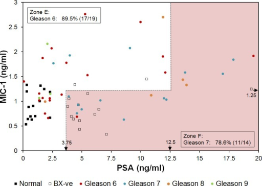 Red and green zones for PCa prognosis in 2D plot of MIC-1 and PSA.For the ease of presentation, one patient with high PSA concentration of 241.3 ng/ml was not shown. Zone E includes 89.5% (17/19) PCa patients with Gleason score 6. Zone F includes 78.6% (11/14) PCa patients with Gleason score 7. Arrows near the bottom and right edges of the plot indicate the concentrations of biomarkers used to define the zones.