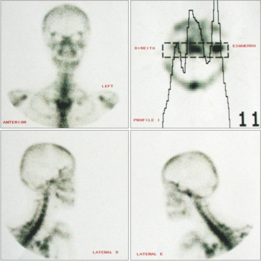Scintigraphy showing activity in the left condyle.