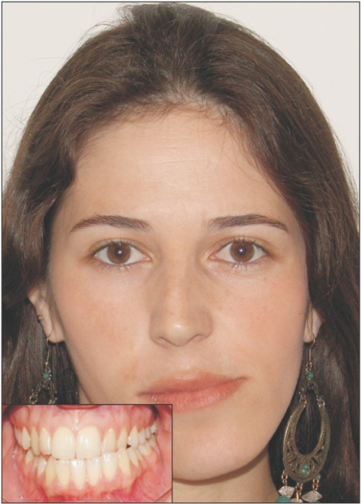 Clinical characteristics showing facial and occlusal deviation to the non-affected side.