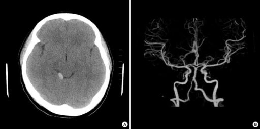 (A) A brain computed tomography scan of a patient demonstrating acute subarachnoid hemorrhage in quadrigeminal plate cistern. (B) A cerebral computed tomography angiography scan of a patient demonstrating no vascular abnormality such as cerebral aneurysm or arteriovenous malformation.