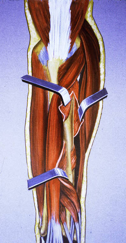 supinator muscle; abductor pollicis longus muscle; radius