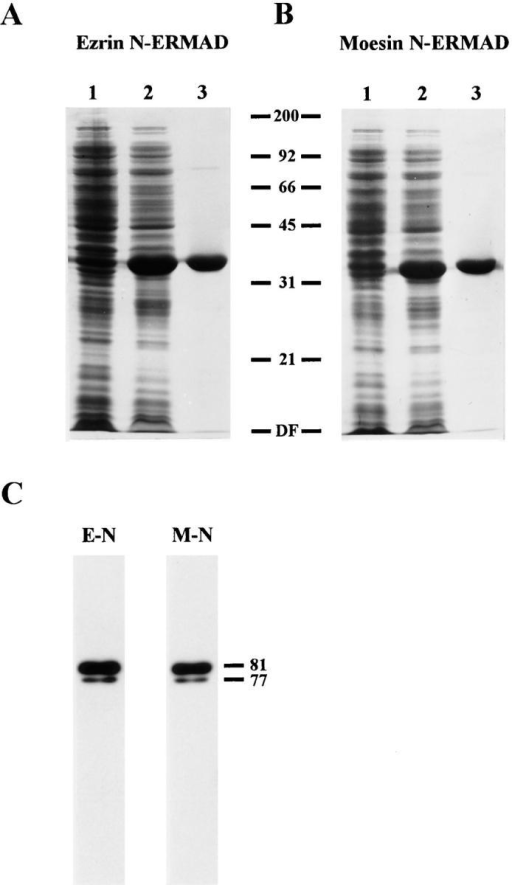 Purification and characterization of ezrin and moesin  N-ERMADs. (A and B) show the purifications. Samples were  run on a 15% SDS gel and stained with Coomassie blue. Lane 1,  total extract of uninduced bacteria; lane 2, total extract of induced bacteria; lane 3, purified proteins. (C) The recombinant  proteins exhibit ERMAD activity. Blot overlays using biotinyl  ezrin N-ERMAD (E-N) and biotinyl moesin N-ERMAD (M-N)  probes on a mixture of ezrin and moesin are shown. The mobilities of molecular mass standards and of placental ezrin (81) and  moesin (77) are indicated in kD. DF, dye front.