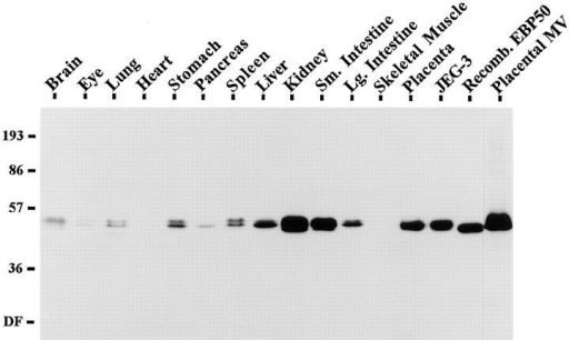 Immunoblot of EBP50 in tissues and cells. 25 μg of total proteins from murine tissues, human placenta and JEG-3 cells,  10 ng of recombinant EBP50, and 2 μg of total proteins of isolated human placental microvilli were resolved on a 11.5% gel,  transferred to PVDF, and probed with affinity-purified antibody  to EBP50.