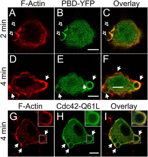 Comparison of Rac/Cdc42 activity and F-actin in forming phagosomes. RAW cells were transiently transfected with the PBD-YFP chimeric probe (B, C, E, and F, green) or with Cdc42Q61L-GFP (H and I, green) and exposed to IgG-opsonized latex beads for the time indicated. The cells were immediately fixed with 4% PFA, permeabilized and stained with rhodamine-phalloidin to visualize F-actin (A, C, D, F, G, and I, red). (A–C) PBD-YFP expressing cells fixed 2 min after addition of beads. (D–F) PBD-YFP expressing cells fixed 4 min after addition of beads. (G–I) Cdc42Q61L-GFP expressing cells fixed after 4 min. Open arrows point to forming phagosomes and closed arrows point to sealed phagosomes. Inset in G–I shows enlargement of phagosome denoted by the box in main panel. Bars, 5 μm. Images are representative of at least three experiments of each type.