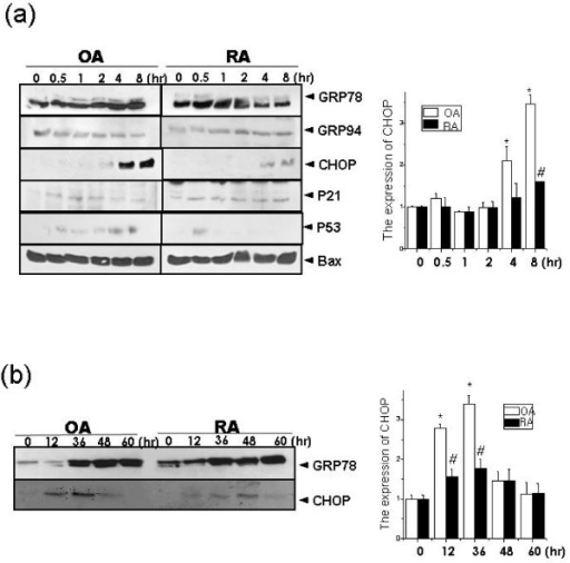 CHOP expression is decreased in thapsigargin-treated RASF. Thapsigargin (5 μM) was added for 0, 0.5, 1, 2, 4 and 8 h and SDS-PAGE and immunoblotting was performed with anti-GRP78, GRP94, CHOP, p21, p53 or Bax antibody (a: upper). The expression of GRP78 and CHOP was quantified (a: lower). OASF and RASF were treated with thapsigargin (5 μM) for 0, 12, 36, 48 and 60 h. After incubation, total protein was extracted. SDS-PAGE was performed and GRP78 and CHOP expression was analyzed (b: upper). The expression of CHOP was quantified (b: lower) *P < 0.05, versus non-treated OASF. #P < 0.05, versus OASF with same treatments.