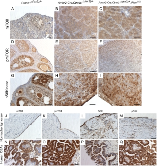 Elevated levels of active mTOR in mouse ovarian tumors and in human OEAs.Sections from ovaries of control (A, D, & G) and mutant mice (B, C, E, F, H, & I) were analyzed by IHC for mTOR, pmTOR, and pS6K, as indicated. IHC of mTOR (J & N) , pmTOR (K & O), S6K (L & P) and pS6K (M & Q) in normal postmenopausal ovaries (n = 3) and in human OEAs (n = 4) as indicated. Bars = 50 um.