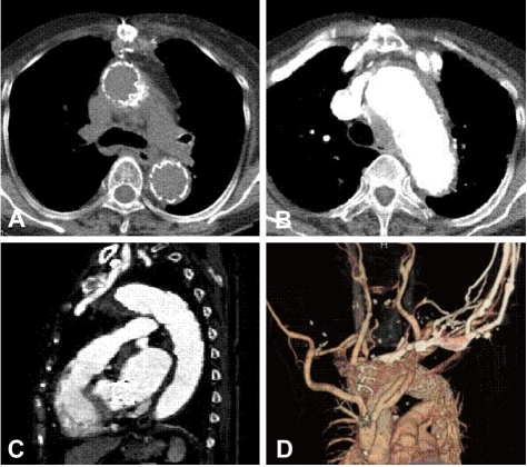 Figure 5 hybrid approach for the treatment of thoracic for Aortic aneurysm with mural thrombus