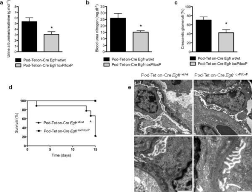 Selective deletion of Egfr from podocytes protects from RPGN(a) Albuminuria (b) blood urea nitrogen concentration and (c) proportion of crescentic glomeruli in Pod-Tet on-Cre Egfrwt/wt and Pod-Tet on-Cre EgfrloxP/loxP mice, 8 days after NTS-induced RPGN (P<0.05 for all comparisons). (d) Survival curve of challenged Pod-Tet on-Cre EgfrloxP/loxP and littermate control mice in a severe model of RPGN. (* P<0.01). (e) Ultrastructural analysis of podocytes by transmission electron microscopy in NTS-treated Pod-Tet on-Cre Egfrwt/wt and Pod-Tet on-Cre EgfrloxP/loxP mice. More severe foot process effacement and irregular thickening of the GBM is visible in Pod-Tet on-Cre Egfrwt/wt animals. Scale bars: upper panels 2μm, lower panels 1μm.