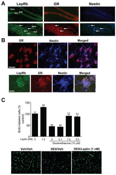 Effect of leptin on dexamethasone-induced suppression of adult hippocampal neural stem/progenitor cell proliferation. A. Colocalization of LepRb mRNA and GR protein in nestin-positive cells in the dentate gyrus of adult hippocampus. Left image, LepRb mRNA in situ hybridization (green); middle image, GR immunostaining (red); right image, nestin immunostaining (blue). White arrows indicate triple-labeled cells for LepRb, GR and nestin. Scale bars = 10 μm. GCL, granular layer; SGZ, subgranular zone. B. Top panel, immunohistochemical staining showing the expression of GR (red) in nestin (blue)-positive hippocampal neural stem/progenitor cells in cultures. Bottom panel, colocalization of LepRb mRNA (green) and GR (red) in nestin (blue) positive cells. C. Adult hippocampal neural stem/progenitor cells were treated with 10 μM dexamethasone (DEX), 1 nM leptin, or a combination of DEX (10 μM) and various doses of leptin (0.1, 1.0 or 3.0 nM). BrdU (10 μM) was added to label proliferating cells and was detected by immunohistochemistry. Top panel, quantitative data demonstrating the effects of leptin and DEX on the number of BrdU-labeled cells. Bottom panel, representative images showing BrdU-labeled cells under different treatment conditions. Data are presented as mean ± SEM. **P < 0.01 compared to vehicle treatment; ++P < 0.01 compared to the DEX treatment.