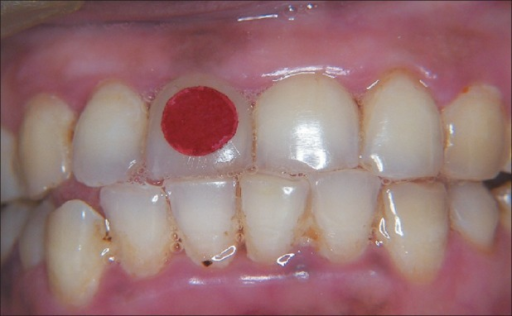 Post Treatment Photograph Of Healthy Gingiva Taken Afte Open I