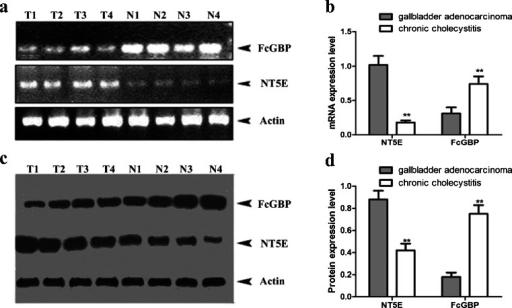 RT-PCR and Western blot analysis of the expression level of NT5E and FcGBP in the gallbladder adenocarcinoma and chronic cholecystitis samples. a, b The total RNA was both extracted from specimens of 15 patients diagnosed as having gallbladder adenocarcinoma and 15 patients diagnosed as having chronic cholecystitis. The mRNA transcription expression levels of NT5E and FcGBP were evaluated by RT-PCR. The values were normalized to GAPDH as an internal control. c, d Western blotting analysis of the levels of NT5E and FcGBP in the gallbladder adenocarcinoma and chronic cholecystitis samples. Proteins were separated by 11.5 % SDS-PAGE. The gels were electroeluted to PVDF membrane and each blot was analyzed with a different antibody: anti- NT5E and anti-FcGBP. The values were normalized to actin as an internal control. Mean expression values ± SE are shown. Asterisks indicate that the expression differences between TGF-β1 induced GBC-SD cells and normal GBC-SD cells are statistically significant (p < 0.05 for Student's t-test)
