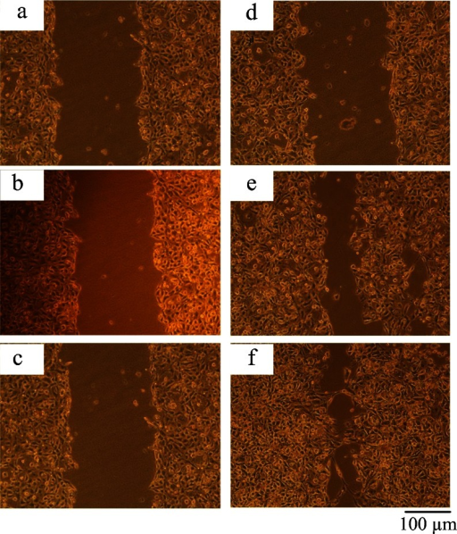 siRNA-mediated knockdown of NT5E affected cell migration in vitro by scratch wound healing assay. a, d GBC-SD cells transfected with pRNA-siNT5E-1. b, e GBC-SD cells transfected with unrelated sequence vector. c, f Non-transfected group. a, b, c Wound at time 0 (0 h) for GBC-SD cells incubated with control, serum-free media. d, e, f 24 hrs after wounding for SW756 cells incubated with control, serum-free media. **P < 0.01 compared to transfected with unrelated sequence vector or non-transfected group. Scale bar 100 μm