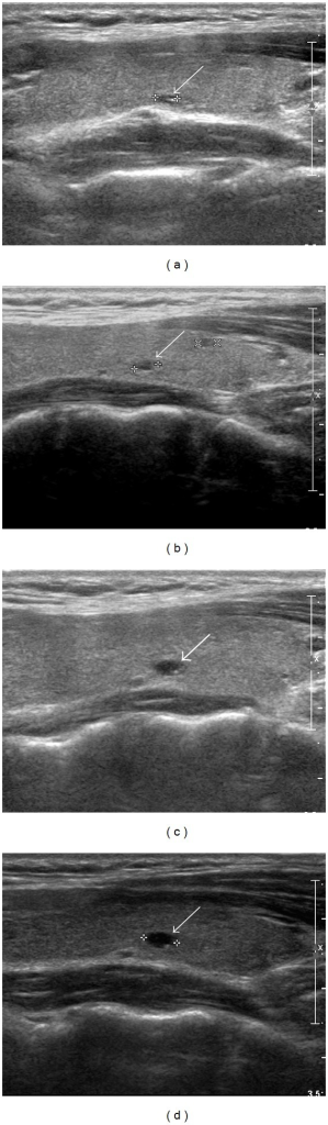 A 27-year-old woman with gradual increase in a thyroid colloid cyst. Preoperative longitudinal sonogram (a) shows a colloid cyst with an anechoic nodule and a comet-tail artifact in the left thyroid lobe (arrow, 3.2 mm at its largest diameter). Upon sequential US follow-ups, this colloid cyst demonstrates a gradual increase at a 1-year (b) (arrow, 3.5 mm at its largest diameter), a 3-year (c) (arrow, 4.7 mm at its largest diameter), and a 5-year (d) (arrow, 5.1 mm at its largest diameter) postlobectomy.