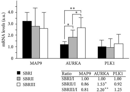 MAP9, AURKA, and PLK1 mRNA levels in ductal breast cancer. The mRNA levels were measured by real-time PCR from RT-PCR reactions of 77 ductal breast tumors. Individual values were normalized to two control genes. Gene expression of MAP9, AURKA, and PLK1 was evaluated by comparing the arithmetic means of the samples belonging to each of the 3 tumor grades SBRI (n = 5), SBRII (n = 28), and SBRIII (n = 44). For MAP9 and PLK1, the differences between the 3 tumor stages were not statistically significant (n.s.), whereas for AURKA there is an increase of gene expression from stage I to III (*P < 0.005, **P < 0.0001). The ratio of gene expression between the 3 tumors stages is indicated in the inset.