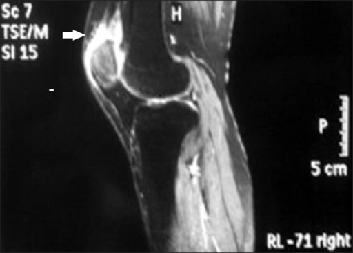 Preoperative sagittal magnetic resonance image of the ridht knee showing complete rupture at the distal quadriceps tendo-osseous junction (arrow).